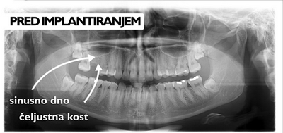 Dvig sinusnega dna pred implantiranjem
