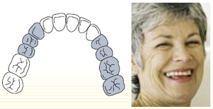 Treatment of partly edentulous jaws