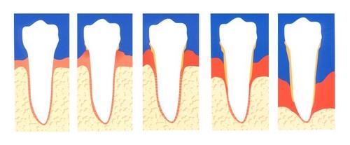 Faze parodontalne bolezni