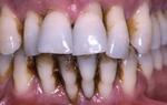 Primer parodontalne bolezni