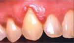 Faza parodontalne bolezni