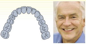Treatment of edentulous jaws