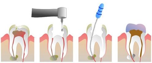 Akutni zobobol