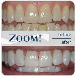 Teeth whitening ZOOM! before and after