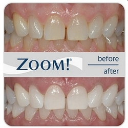 Effective Zoom! whitening system
