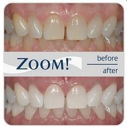 Zoom! Beljenje zob prej in potem